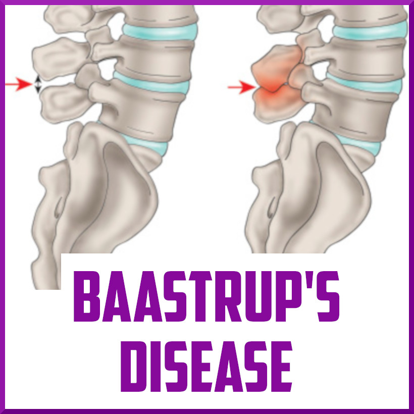 Baastrups Disease Cover