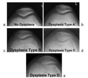 Recurrent Patellar Instability Classification