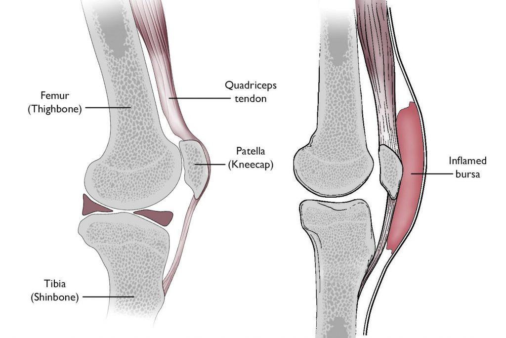 Prepatellar bursitis anatomy