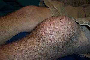 prepatellar bursitis clinical
