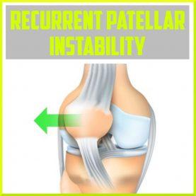 recurrent patellar instability cover