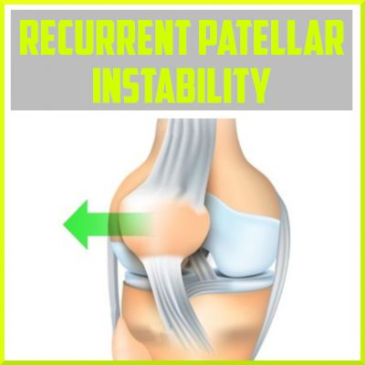 recurrent patellar instability cover