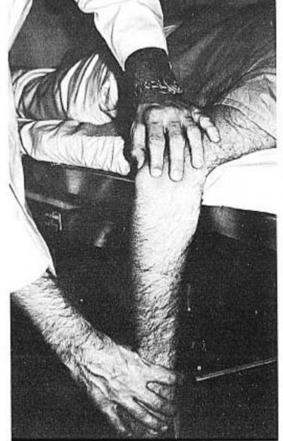 Elbow dislocation reduction Meyn-Quigley