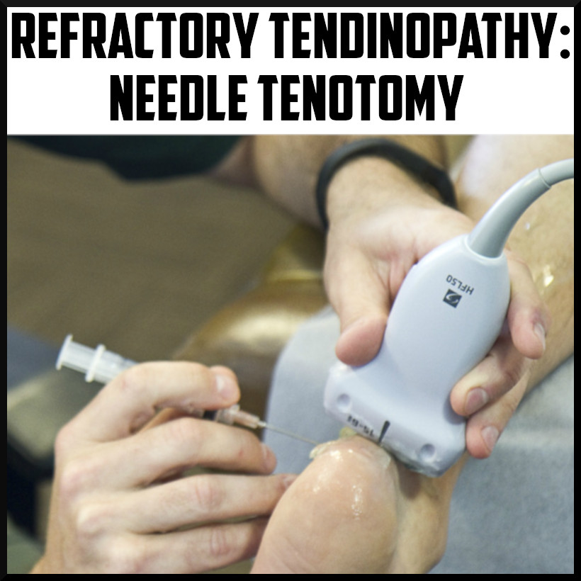 needle tenotomy tendonitis tendinopathy treatment