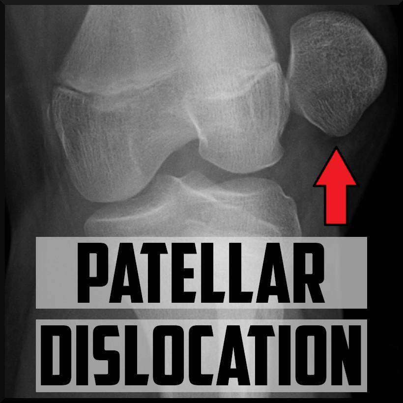 patellar dislocation cover
