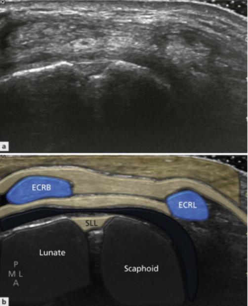 Dorsal scapholunate ligament ultrasound