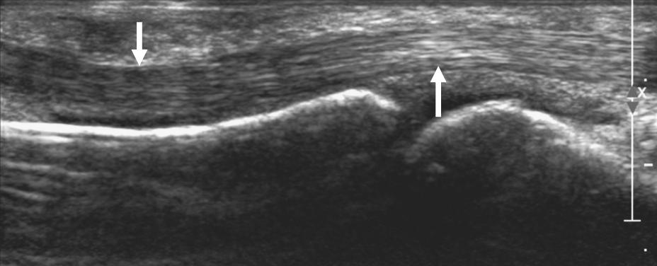 Normal Flexor Tendon ultrasound