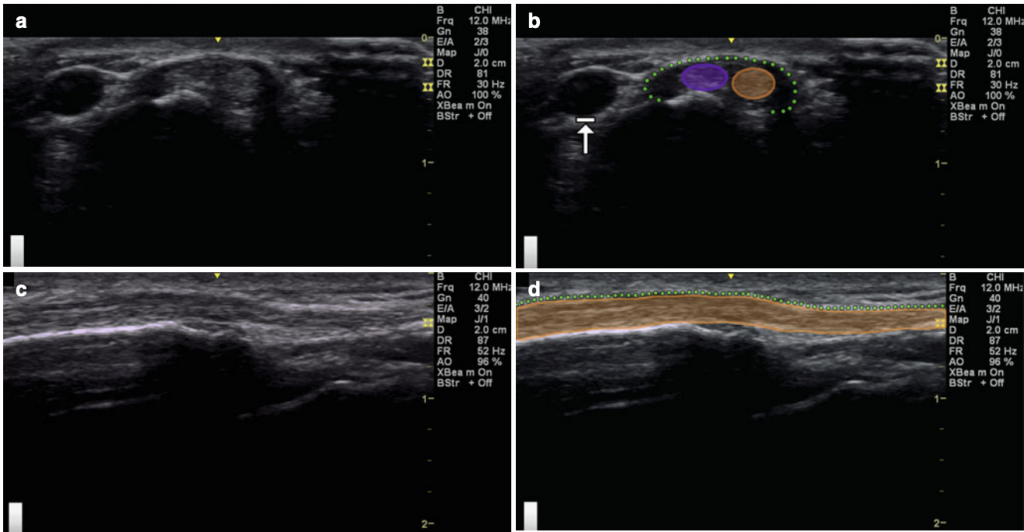 First Dorsal Compartment Thumb ultrasound