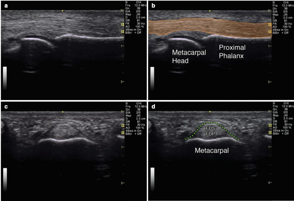 Flexor tendon A1 pulley ultrasound