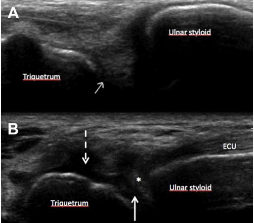 triangular fibrocartilage TFC ultrasound