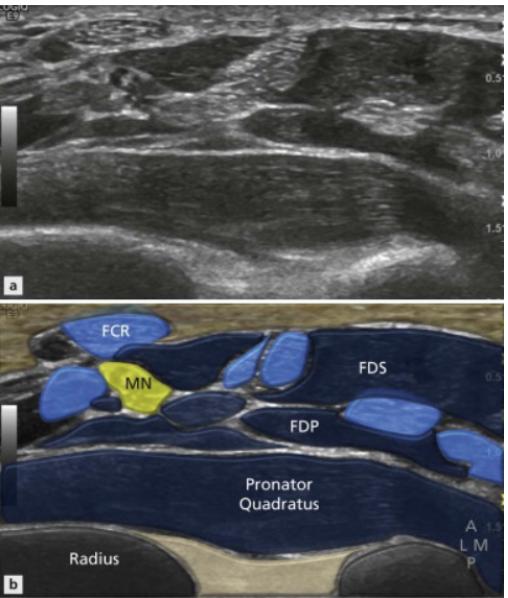 Volar wrist home ultrasound