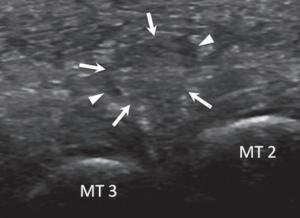 ultrasound mulder maneuver morton's neuroma 2