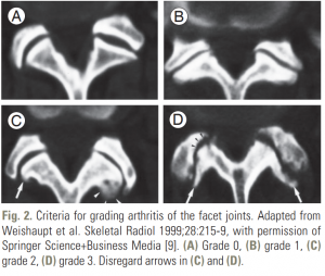 CT image facet joint back pain