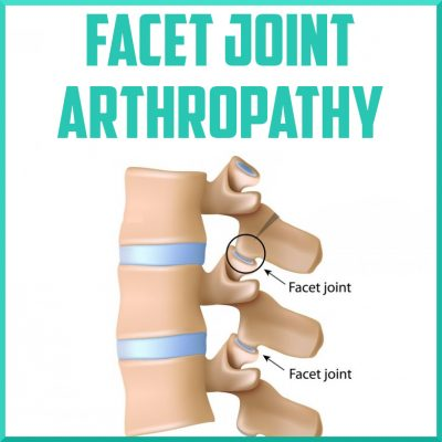 facet joint arthropathy cover