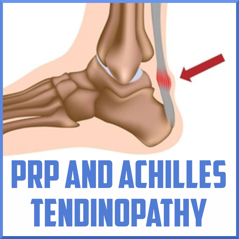 PRP and achilles tendinopathy