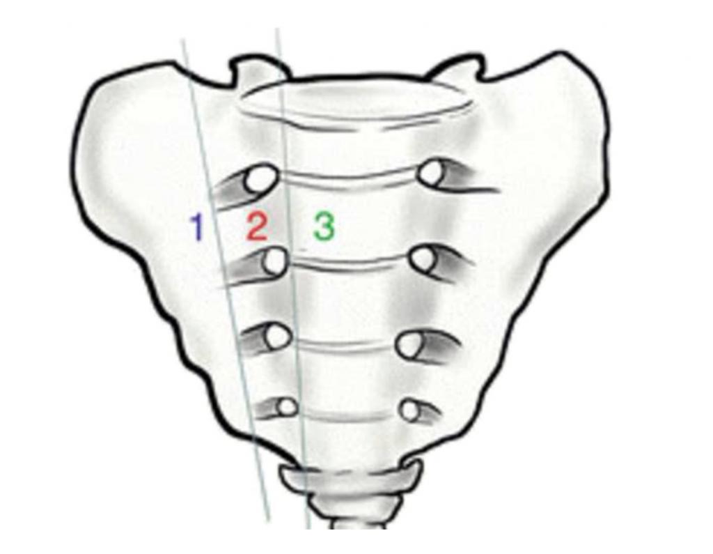 Denis classification sacrum