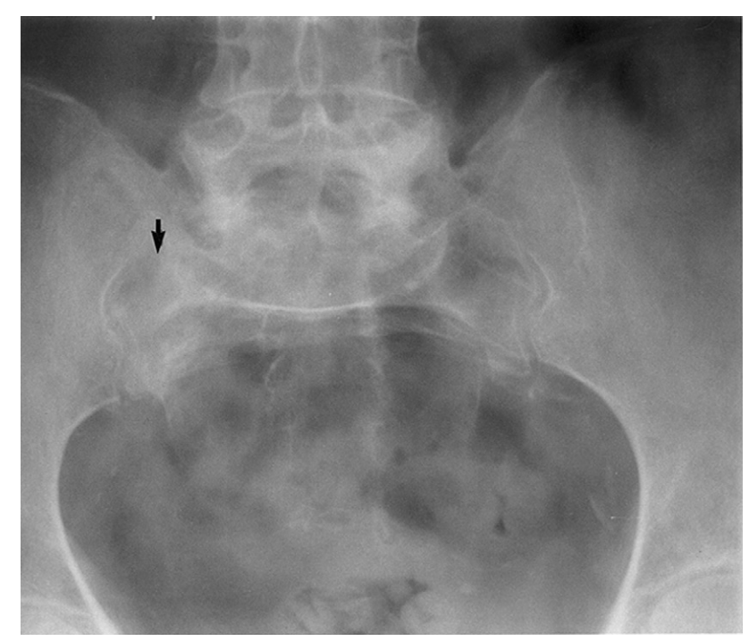 X-ray sacral insufficiency fracture