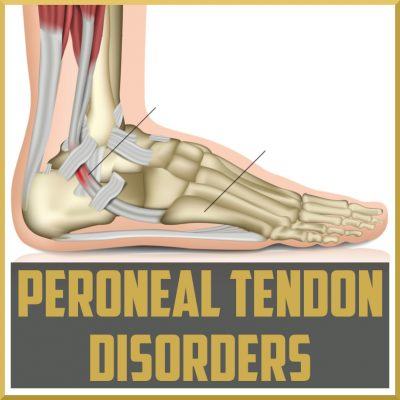 peroneal tendon disorders cover