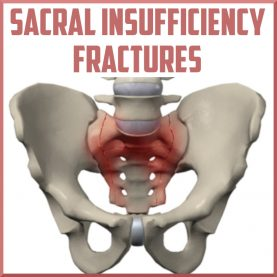 Sacral insufficiency fracture