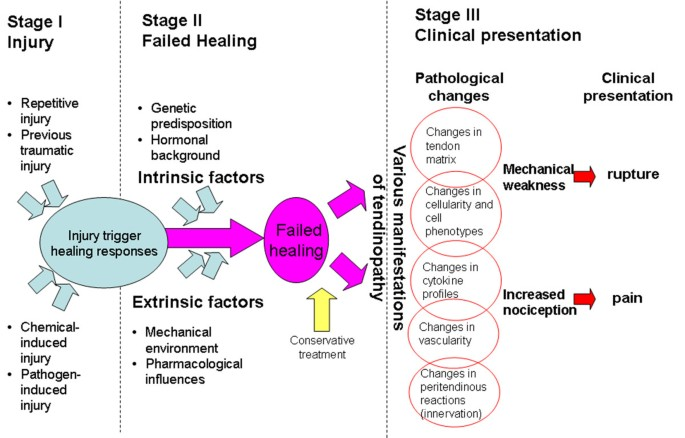 the stages and pathogenesis of tendonitis