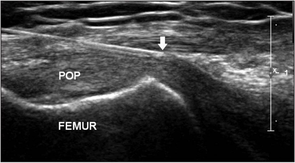 Knee US popliteus tendon corticosteroid injection