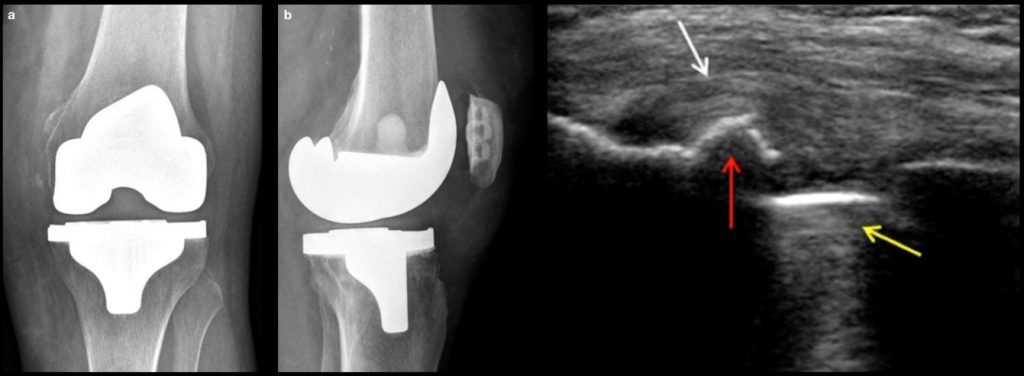 Knee US snapping of popliteus tendon following total knee arthroplasty