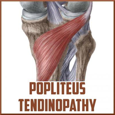 popliteus tendinopathy knee pain cover