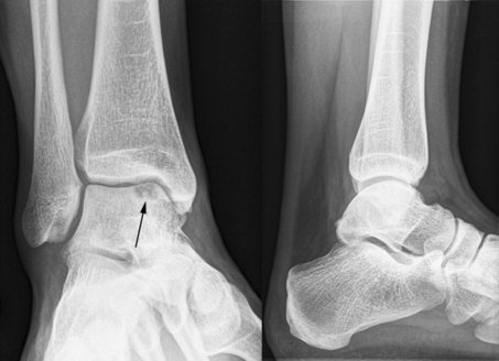 Osteochondral Defect of the Talus XR
