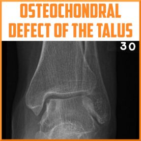 Osteochondral defect of the talus