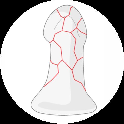 Distal phalanx tuft fracture color